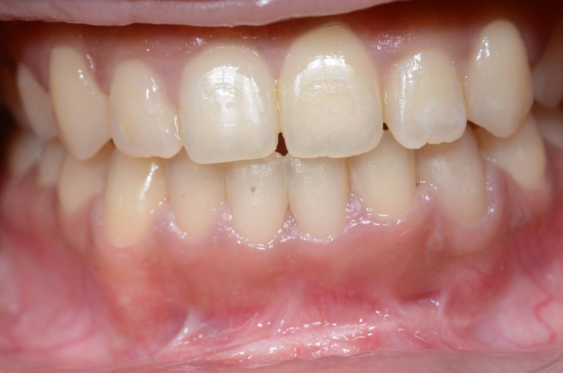 Cabinet Orthodontie 31 - Encombrements dentaires chez l'adulte, résultats du traitement