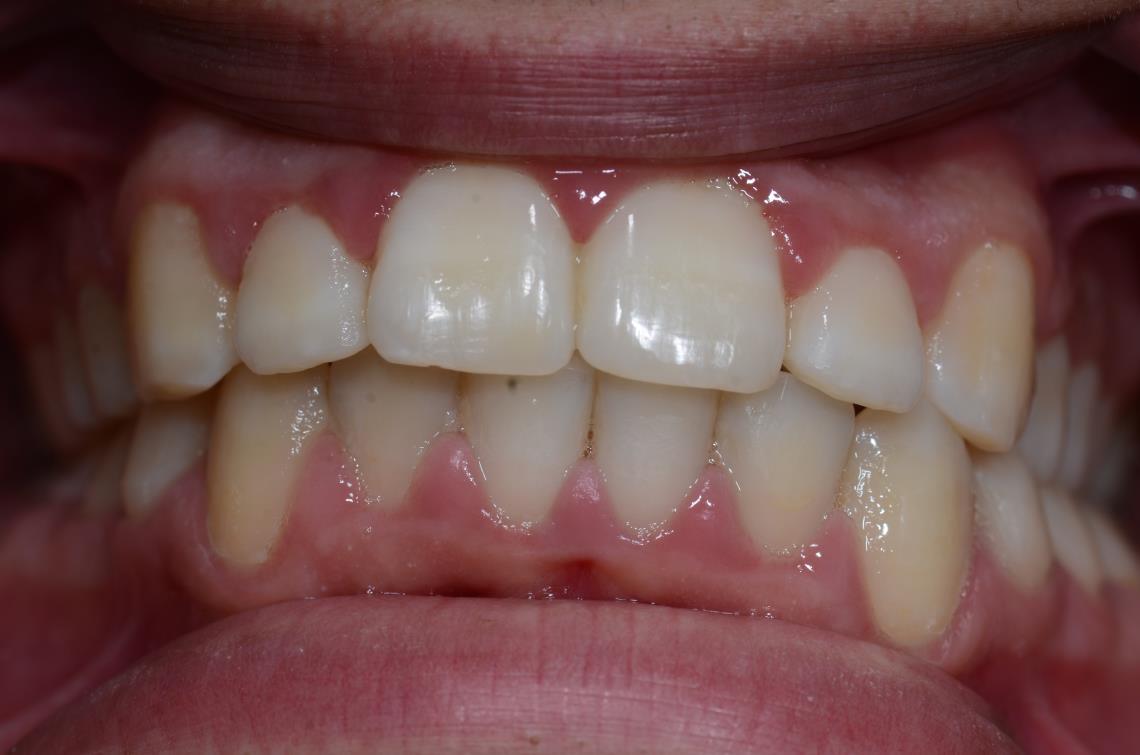 Cabinet Orthodontie 31 - Encombrements dentaires chez l'adolescent, résultats du traitement