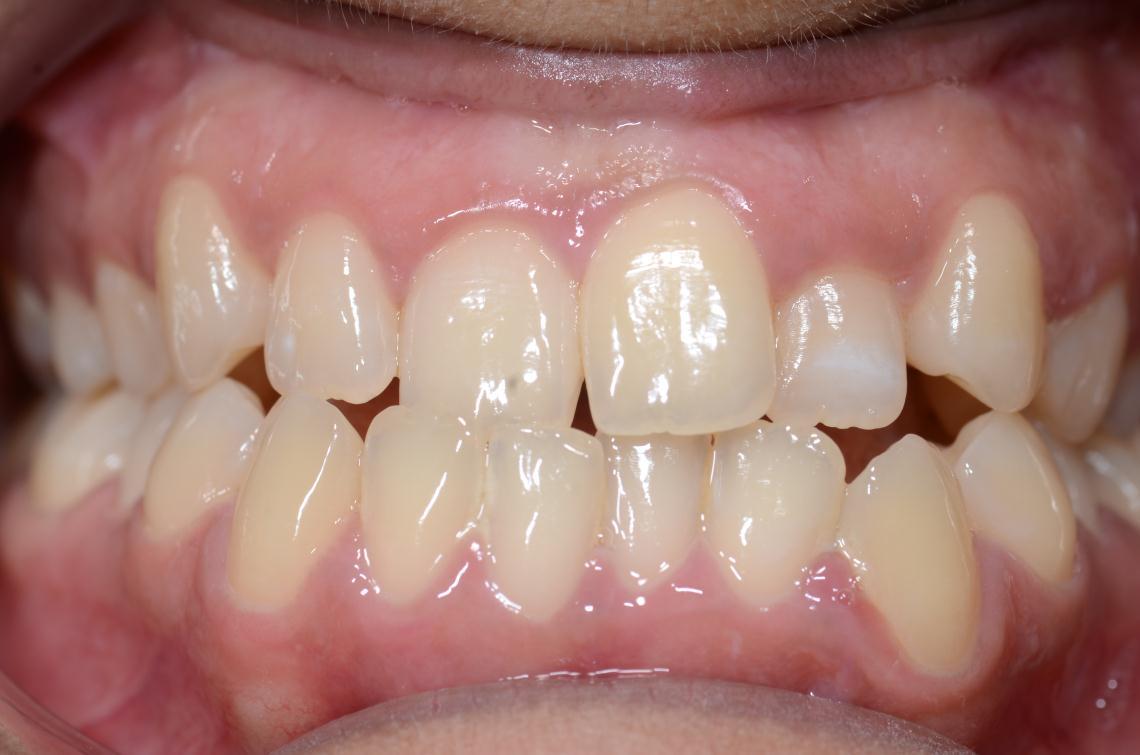 Cabinet Orthodontie 31 - Encombrements dentaires chez l'adulte avant traitement