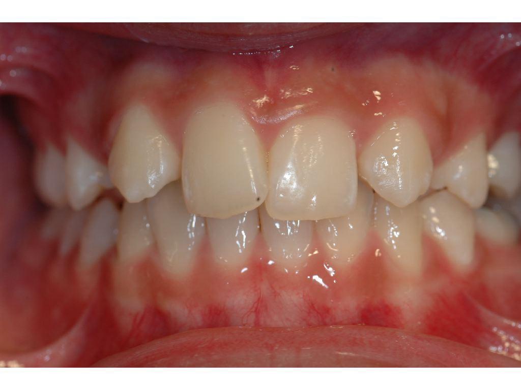 Cabinet Orthodontie 31 - Absence des incisives latérales du haut chez l'adolescent avant traitement