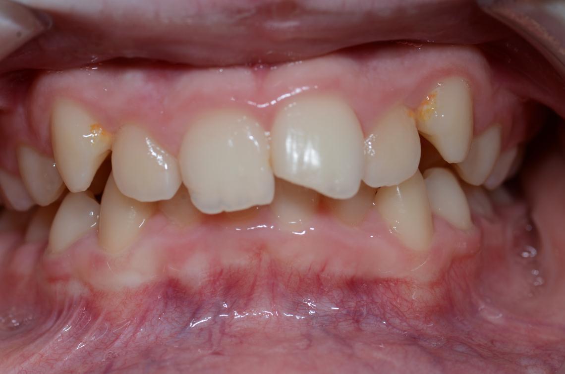 Cabinet Orthodontie 31 - Supraclusion et encombrements dentaires chez l'adolescent avant traitement