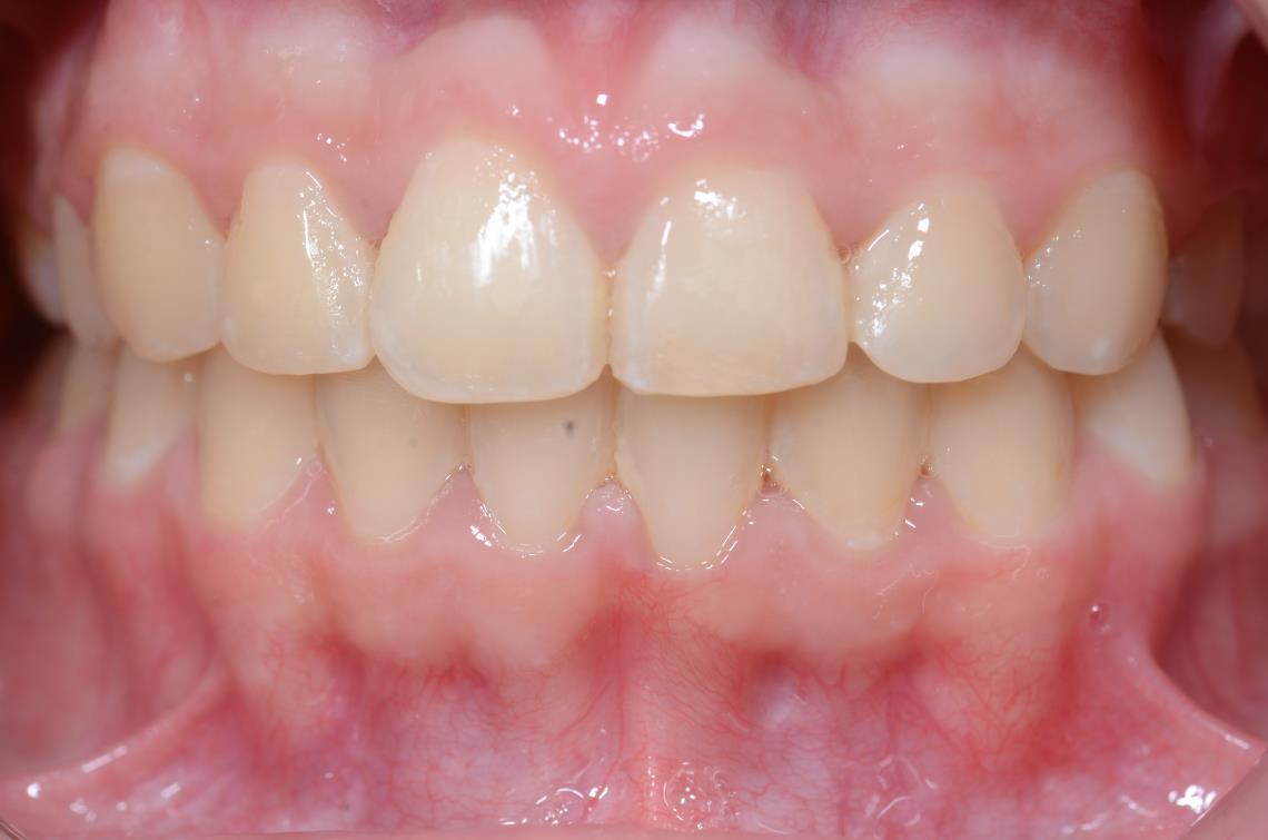Cabinet Orthodontie 31 - traitement cas béance ado, résultat du traitement