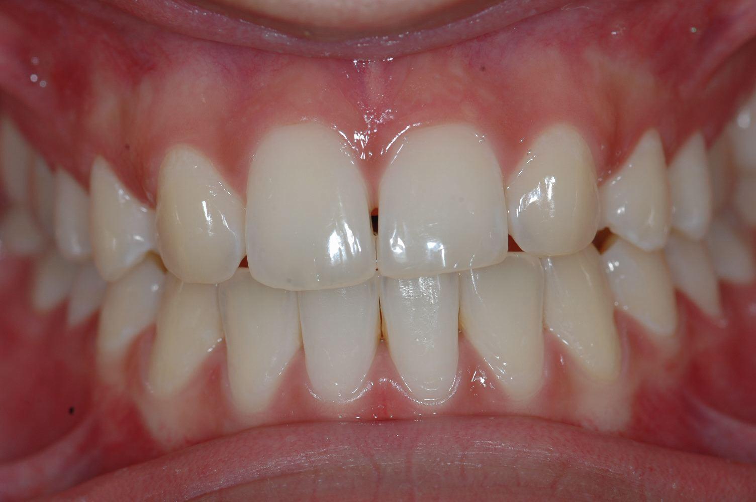 Cabinet Orthodontie 31 - Absence des incisives latérales du haut chez l'adolescent, résultats du traitement