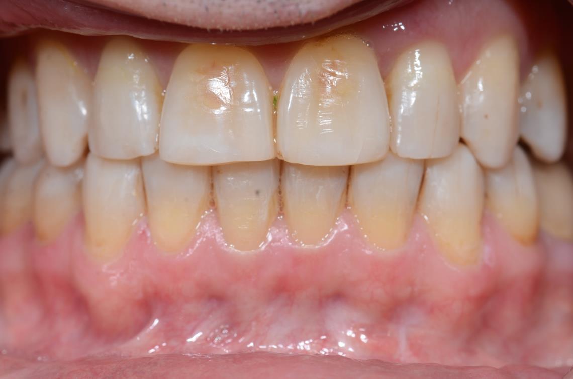 Cabinet Orthodontie 31 - Malpositions et encombrements dentaires chez l'adulte, résultats du traitement