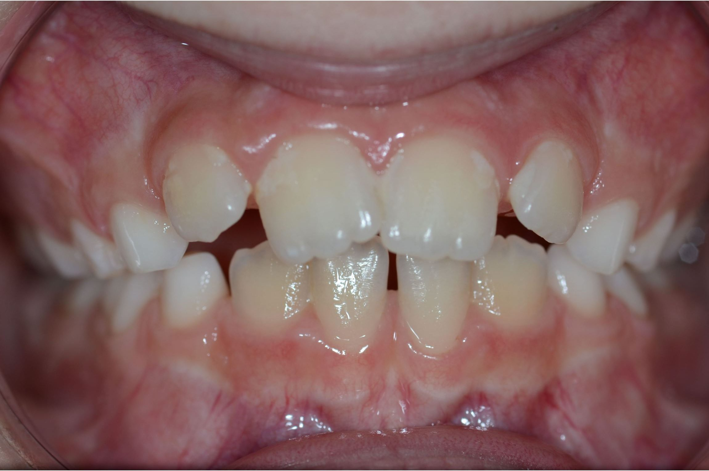 Cabinet Orthodontie 31 - Malpositions et encombrements dentaires et malocclusion chez l'adolescent avant traitement