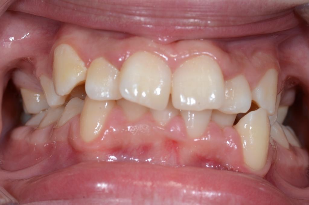 Cabinet Orthodontie 31 - Encombrements dentaires chez l'adolescent, avant traitement