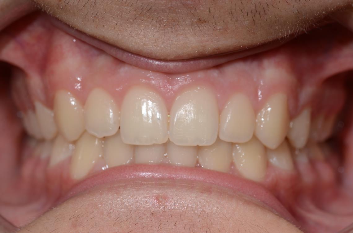 Cabinet Orthodontie 31 - Malpositions et encombrements dentaires et malocclusion chez l'adolescent, résultats du traitement