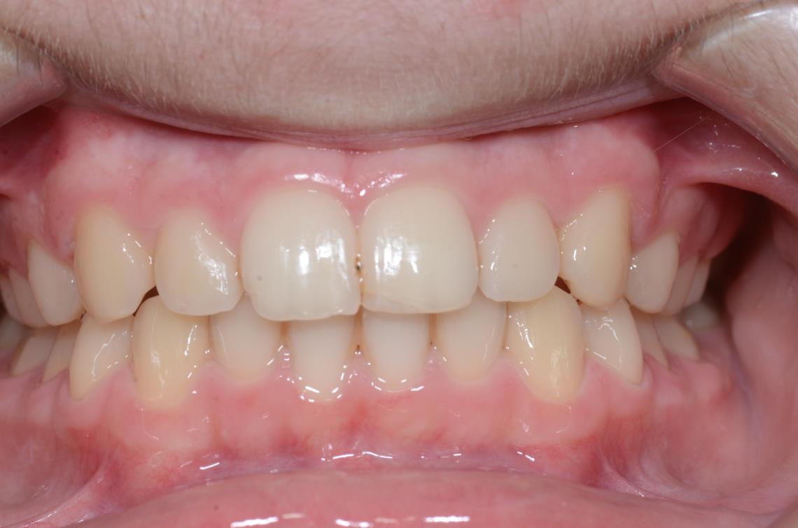 Cabinet Orthodontie 31 - Supraclusion et encombrements dentaires chez l'adolescent, résultats du traitement
