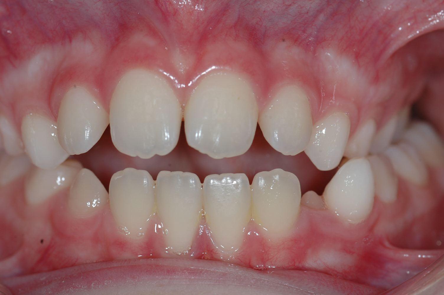 Cabinet Orthodontie 31 - traitement cas béance ado avant traitement