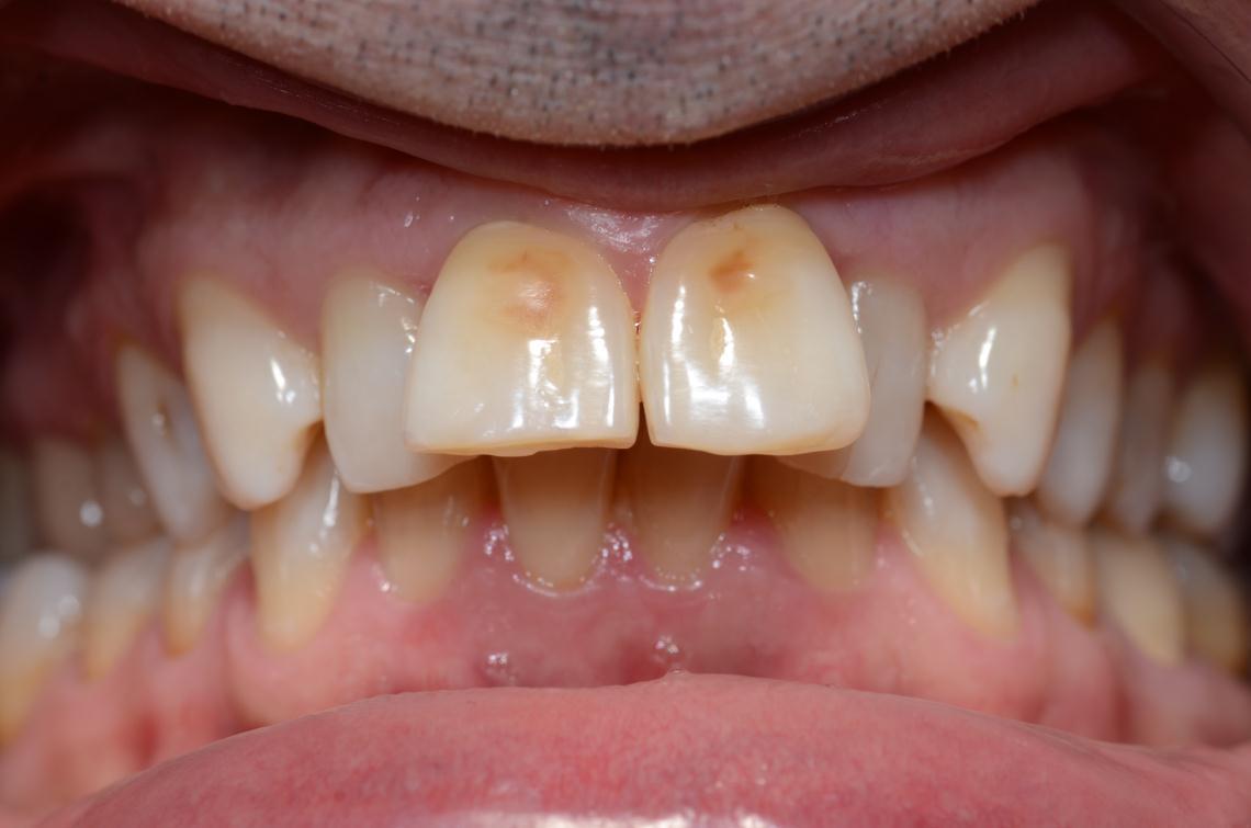 Cabinet Orthodontie 31 - Malpositions et encombrements dentaires chez l'adulte avant traitement